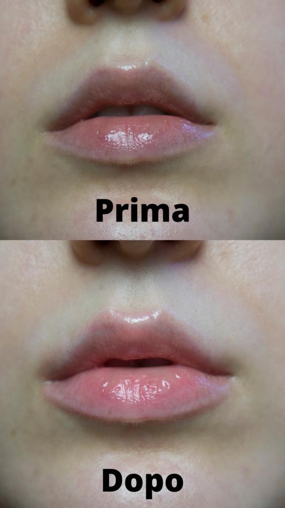 WELL lip plumper